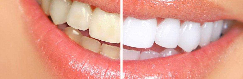 Izbeljivanje zuba stomatološka ordinacija DENT IN PLUS Kraljevo