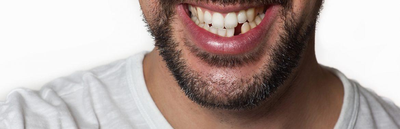 Kako i zašto nadoknaditi izvađen zub? DENT IN PLUS Kraljevo