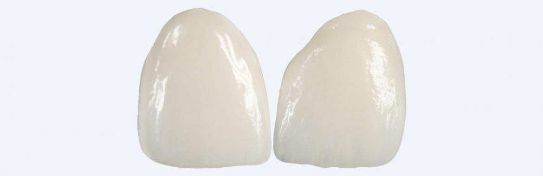 Dentalni faseti - vinili stomatološka ordinacija DENT IN PLUS Kraljevo