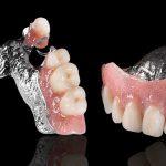 zubne proteze DENT IN PLUS Kraljevo