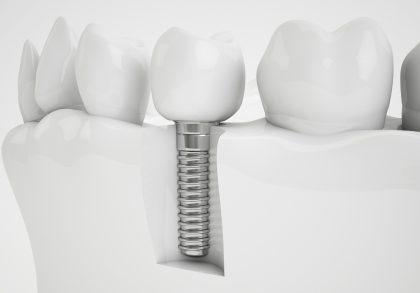 Zubni Implantat