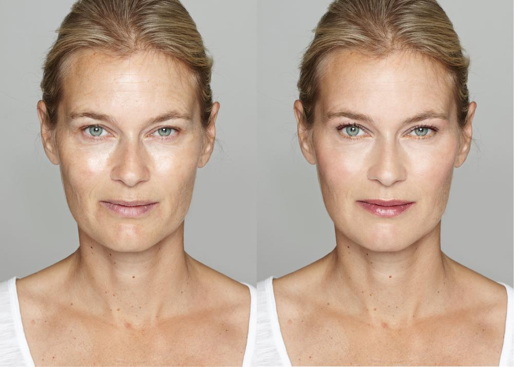 facelifting zatezanje lica kraljevo, tretman hijuluronskim filerima