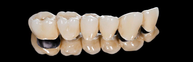 Krunice i mostovi stomatološka ordinacija DENT IN PLUS